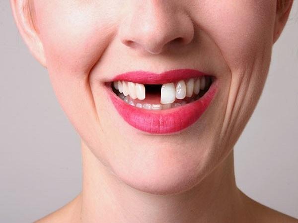 Mơ thấy gãy răng mang lại cho bạn tai họa gì