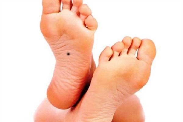 Nốt ruồi ở lòng bàn chân mang đến vận mệnh gì?